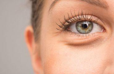 Ursachen von geschwollenen Augen und was man dagegen tun kann