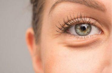 Augenlidsenkung: Warum tritt es auf und wie geht man damit um?