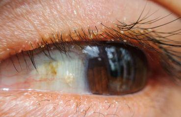 Blepharitis oder Lidrandentzündung: Symptome und Behandlung