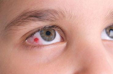 Geplatzte Ader im Auge: Ist das gefährlich und was sind die Ursachen?