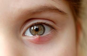 Gerstenkorn im Auge: Ursachen, Behandlung & Dauer