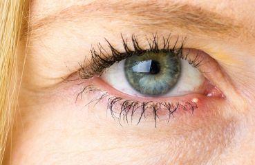 Hagelkorn am Auge: Diagnose und Behandlung