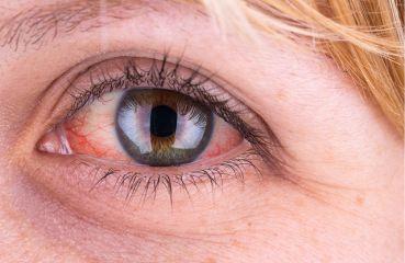 Rote Augen – ein weit verbreitetes Problem